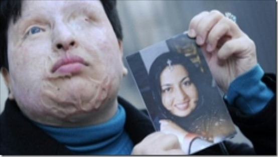 iran-woman-acid-blinding-punishment