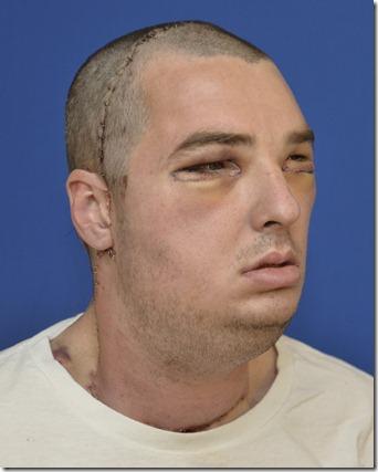 ричард норрис-после операции