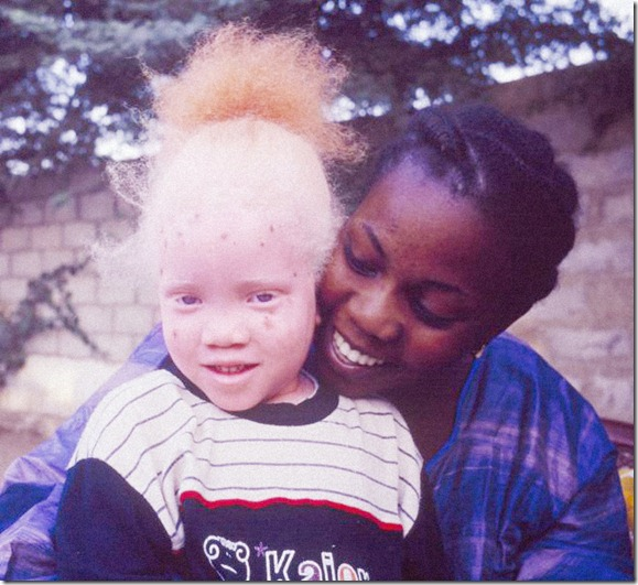 African Albino Foundation (5)