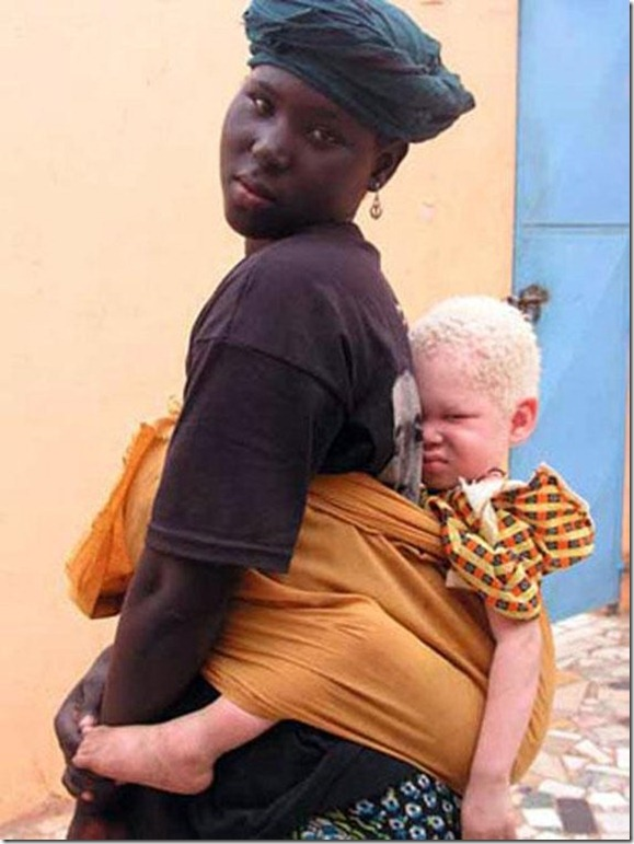 albinism_004