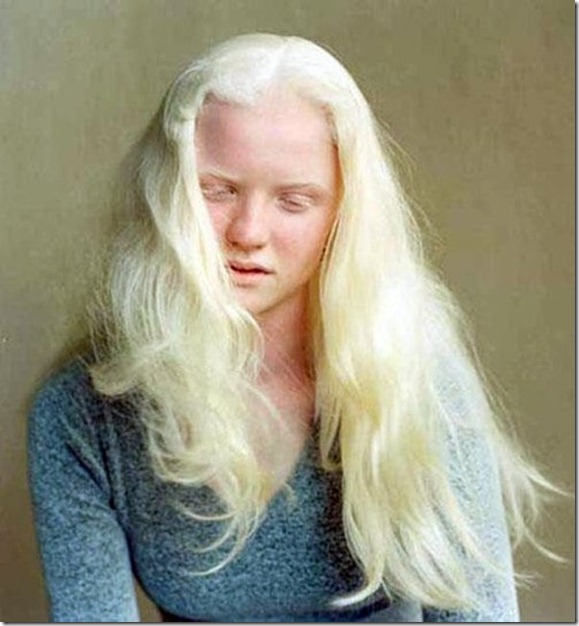 albinism_005